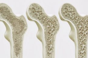 Testosteronsubstitution: Testosteronmangel und Osteoporose