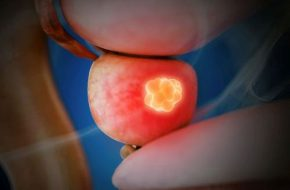 Andrologie: Testosteronsubstitution bei PCa-Patienten