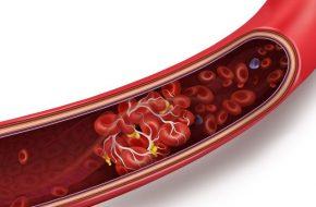 Erhöhtes Risiko arterieller und venöser Gefäßverschlüsse bei KrebspatientInnen